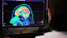 Alzheimer'la mücadelede önemli gelişme