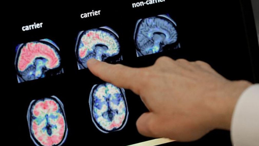 ABD'de beyin yiyen amip tespit edildi