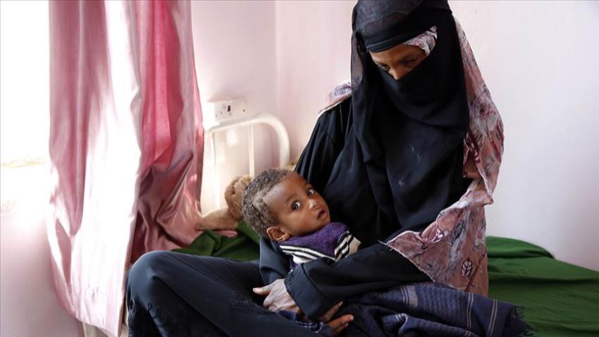Yemen'de 10 milyon insan açlıkla burun buruna