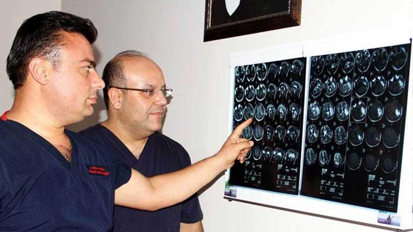 Koronavirüs beyin sisine yol açıyor... Kurtulanlarda ortaya çıkan kalıcı hasarlar